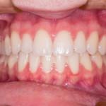 Bolezen dlesni je treba jemati resno